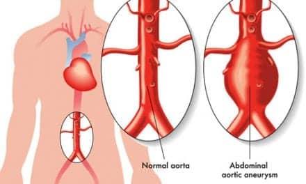 Asthma Boosts Abdominal Aneurysm Rupture Risk