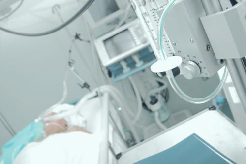 ARDS Development in ICU Often Goes Unrecognized
