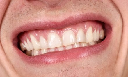 Can COPD and Asthma Make Gums Bleed?