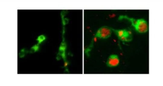 'Clogged-up' Immune Cells Help Explain Smoking Risk for TB