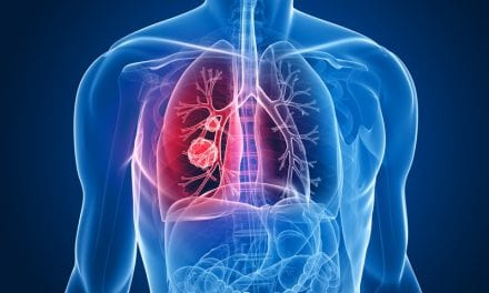 Possible Marker for Lung Cancer Chemotherapy Identified