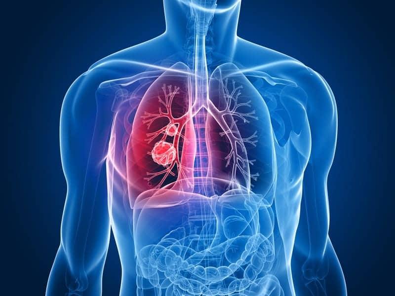 FDA Grants Breakthrough Therapy Designation to Lorlatinib for ALK–Positive NSCLC