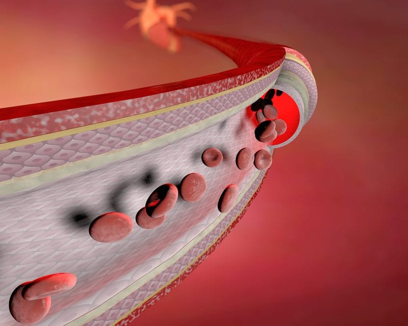 Greater Risk for COPD Found with High Coronary Artery Calcium Scores
