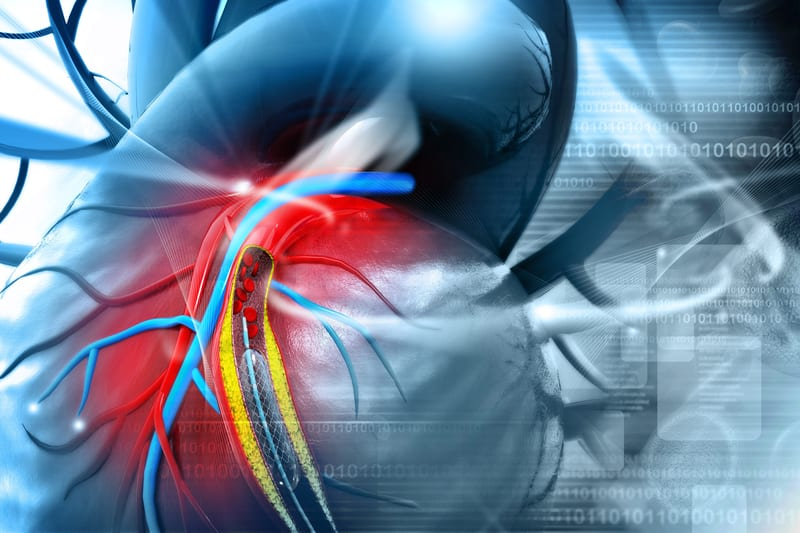 COPD: Pulmonary Hyperinflation Tied to Larger Pulmonary Artery
