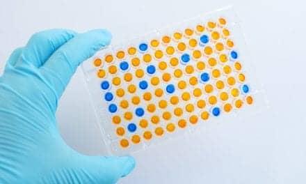Biomarker Identifies Asthma Aspirin Intolerance