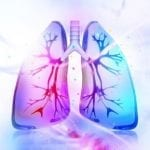 First Chronic Bronchitis Patients Treated with RejuvenAir 'Cryospray'