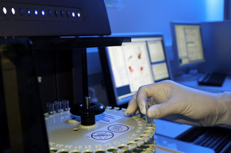 Bioclinical Phenotyping May Benefit Diagnosis of Chronic Airway Disease