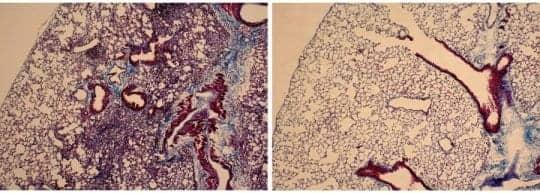 M10 Peptide Reverses Fibrotic Damage in Interstitial Lung Disease Model