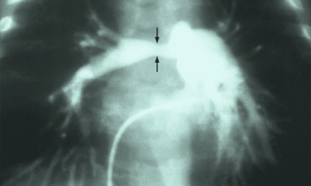 Pulmonary Artery Stenting Linked to High Procedural Success, Adverse Event Rates