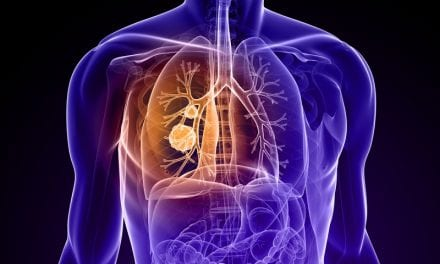 Blocking Blood Supply to Tumors May Stifle Lung Cancer