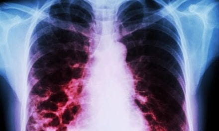 Bronchiectasis in COPD Patients Linked to Worse Outcomes, Higher Exacerbation Risk