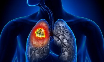 Study Suggests Epiregulin as Target in Lung Cancer