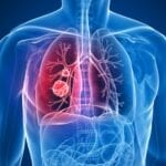 FDA Clears Optellum's Clinical Decision Support Software to Diagnose Lung Cancer