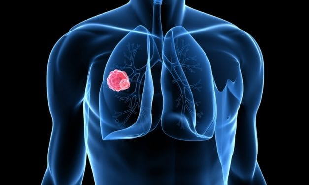 FDA Approves Rybrevant for Certain NSC Lung Cancer Patients