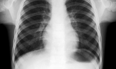 Bronchiectasis Prevalence in US Higher Than Previously Thought