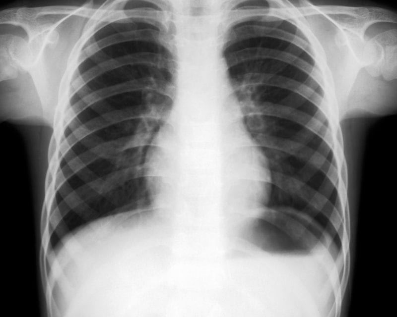 Traction Bronchiectasis Part of Continuous Lung Remodeling in IPF