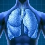 CT Scan Screening Catches Most Lung Cancers at Early Stage, Study Finds