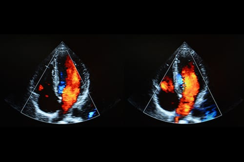 Early Detection of PH, BPD Possible with Echocardiography