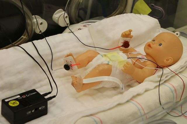 A Simple Treatment for Preemie Breathing Problem