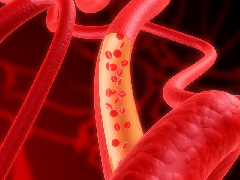 Pulmonary Blood Vessel Loss Tied to Mortality Risk in Smokers