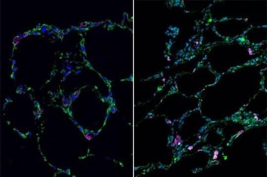 Scientists Create 3D Lung 'Organoids' via Stem Cells