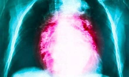 GERD, Nasal Symptoms Affect Bronchitis Severity in COPD