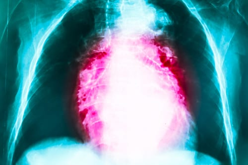 GERD Treatment Reduced Hospitalizations for Respiratory Infections