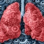 Lung Cancer: Less Invasive Surgery for Faster Recovery
