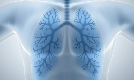 New Diagnostic Guideline for Idiopathic Pulmonary Fibrosis