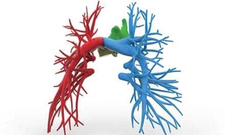 Avoid Sildenafil in Valve Disease with Residual PH