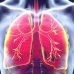 Study: Discontinuation of Therapy High In Asthma Patients