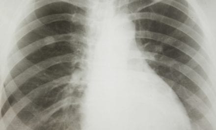 Genomic Alterations Similar Between Black, White Patients with Lung Cancer