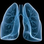 Optical Biopsy Shows Promise for Lung Transplant Patients