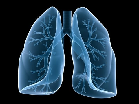 Bronchiectasis Study Links Three Factors to Drug-resistant Infections