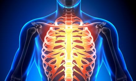 What is Slipping Rib Syndrome?