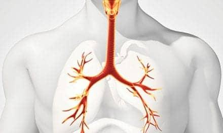 RheOx Bronchial Rheoplasty System Gets FDA Breakthrough Designation
