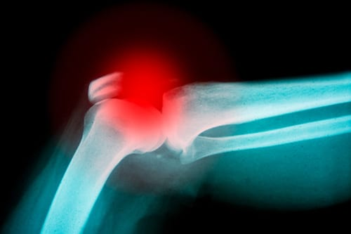 COPD: Long-term ICS Usage May Increase Risk of Bone Fractures