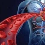 RT Awareness and Preferences Regarding Pulmonary Hypertension Treatment