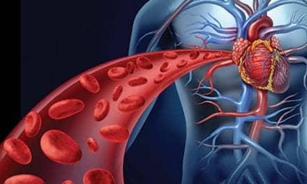 Chemotherapy Helping Kids Live with Pulmonary Vein Stenosis