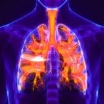 Airway Clearance Therapy and non-Cystic Fibrosis Bronchiectasis