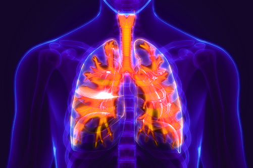 Risk Factors for Bronchiectasis in COPD Patients