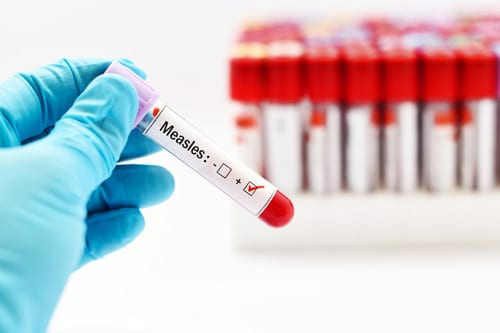 Four Unvaccinated Children in Florida Have Measles
