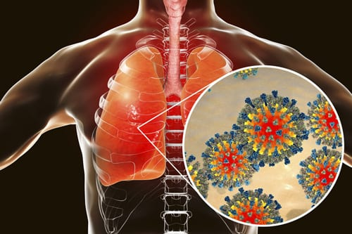 WA Measles Outbreak Affecting Russian-speaking Communities