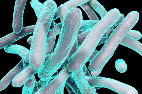 Interstitial Lung Disease: Gram-negative Bacteria Increases Mortality, ICU Admission