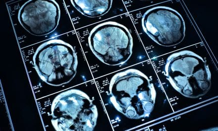 Novartis' Capmatinib Fights Lung Cancer In the Brain