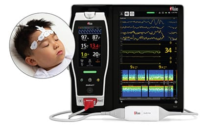 Masimo's Pediatric Brain Function Monitor Gets CE Approval