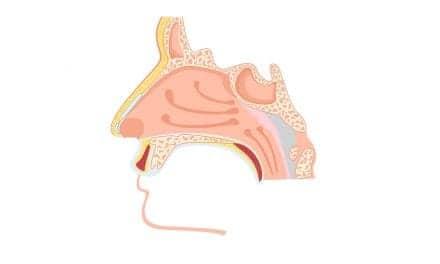 FDA Accepts Xolair sBLA for Treatment of Nasal Polyps