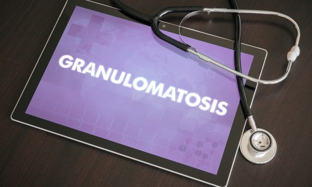 Case Study Explores Vaping-related Granulomatosis