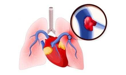 Unexplained Dyspnea May Indicate Pulmonary Embolism