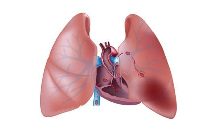 These Six Surgeries Have Elevated Post-op Pulmonary Embolism Risk